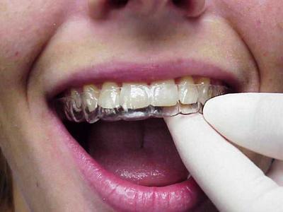 Les bagues dentaires prix en algerie – Bijoux de la saison 2018
